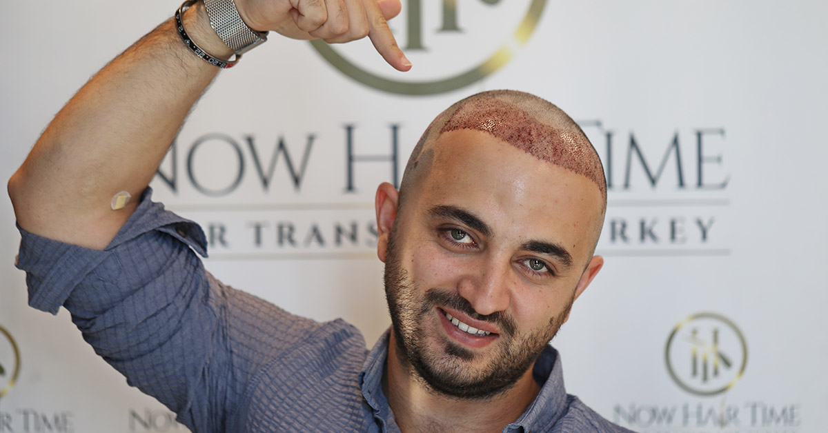 How Much is FUE Hair Transplant Price?