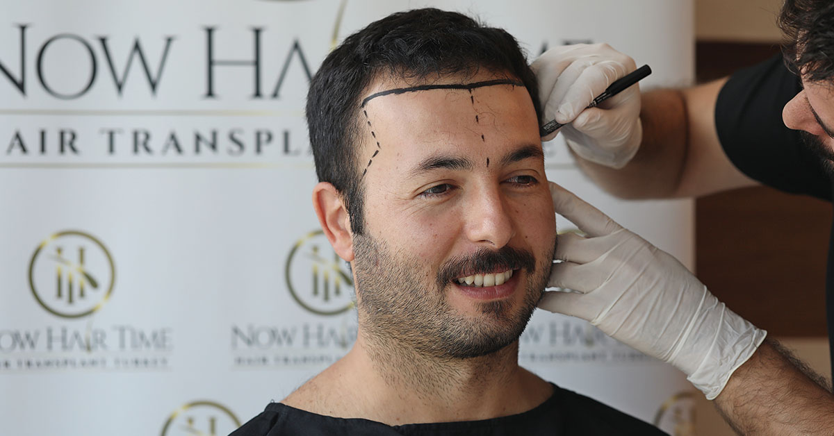 When Should Hair Transplant Be Done?