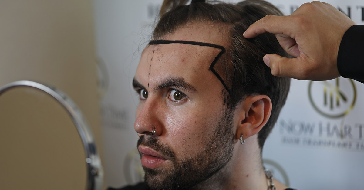 Which Hair Transplant Method is Better?