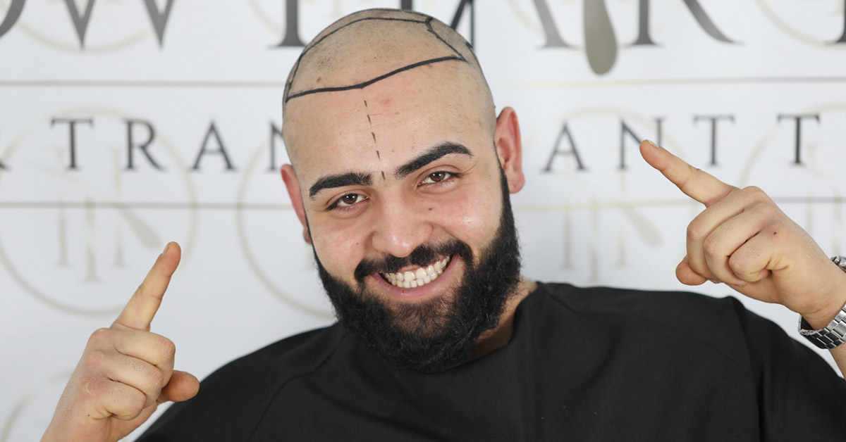 Which Criteria Should a Good Hair Transplant Technique Have?